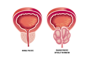 Prostate Infection Natural Treatment