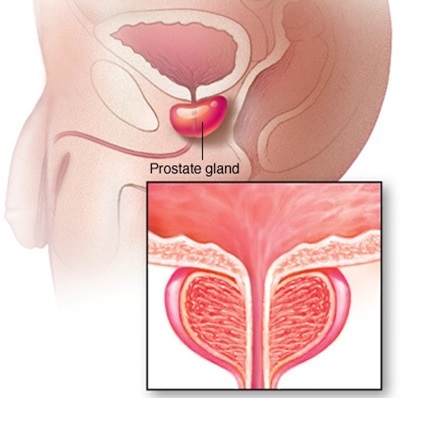 Symptoms Of Prostate Problems
