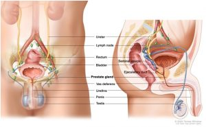 Prostate cancer survival rate