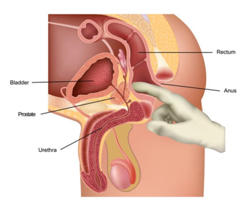Prostate massage therapy